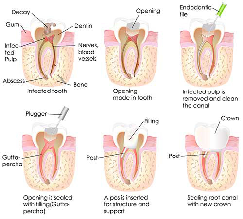 Rhodes Ranch Root Canals